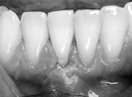 Krytí obnažených krčků zubů