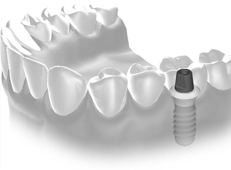 Implantace